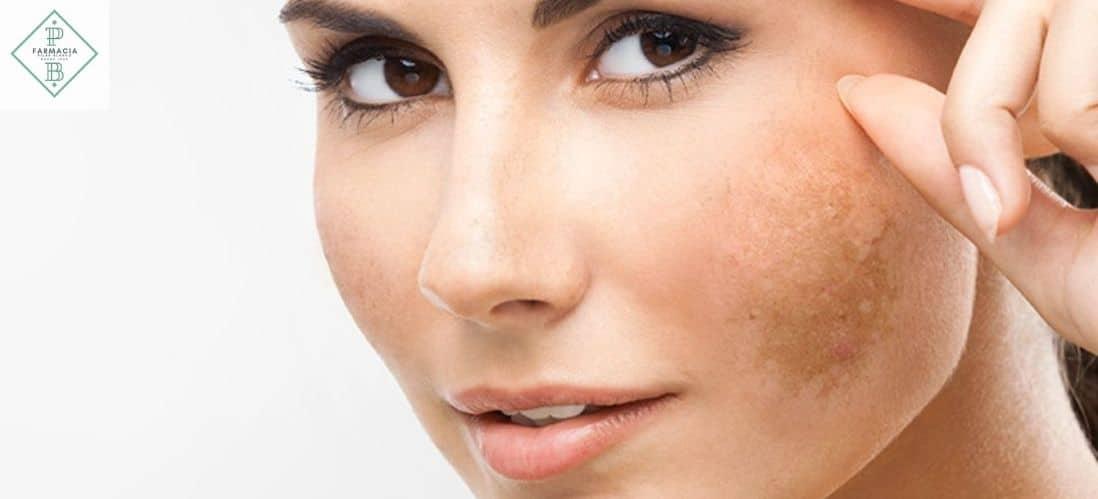 evitar las machas faciales en Verano